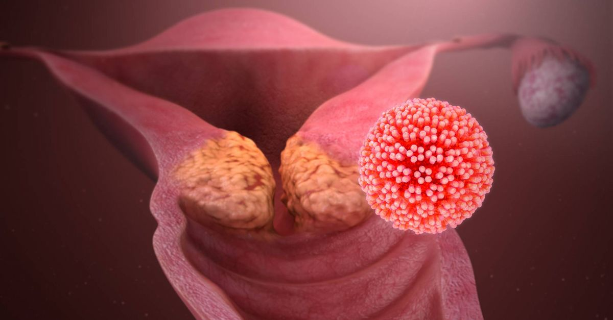 Ist papillomavirus symptomes, Papillomavirus homme mst Papillomavirus est ce une mst